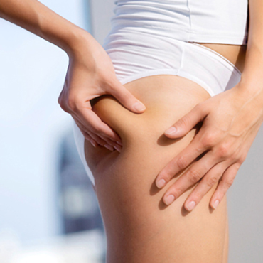 How to effectively get rid of cellulite